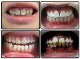 bleka tänderna växjö