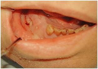 infektion i tand svullen kind