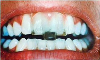 tandläkare göteborg bettskena