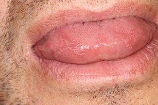 sveda på tungan
