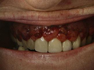 böld i tandköttet