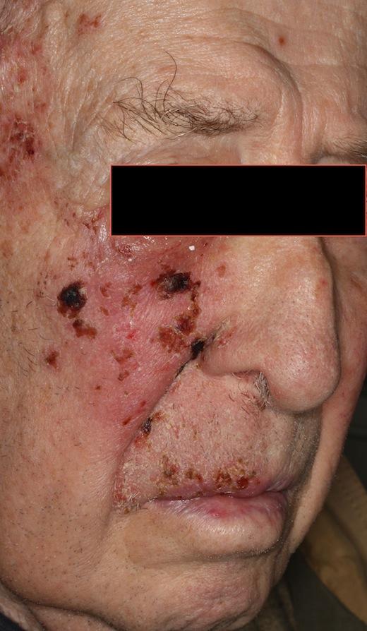 3 dagars feber blåsor i munnen