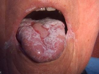 svamp i munnen orsak