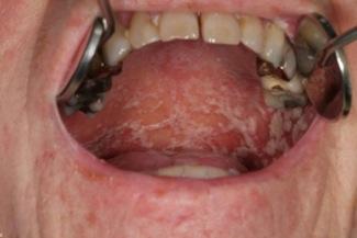 svampinfektion i halsen