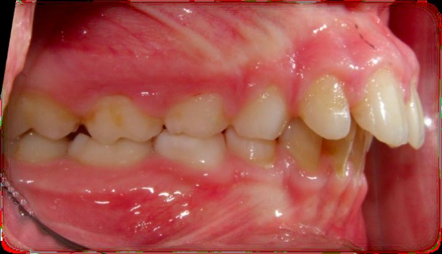 vill ha tandställning
