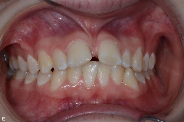 Frenulumplastik - Internetodontologi