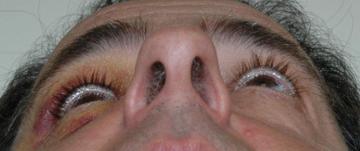 likvorläckage näsa symptom